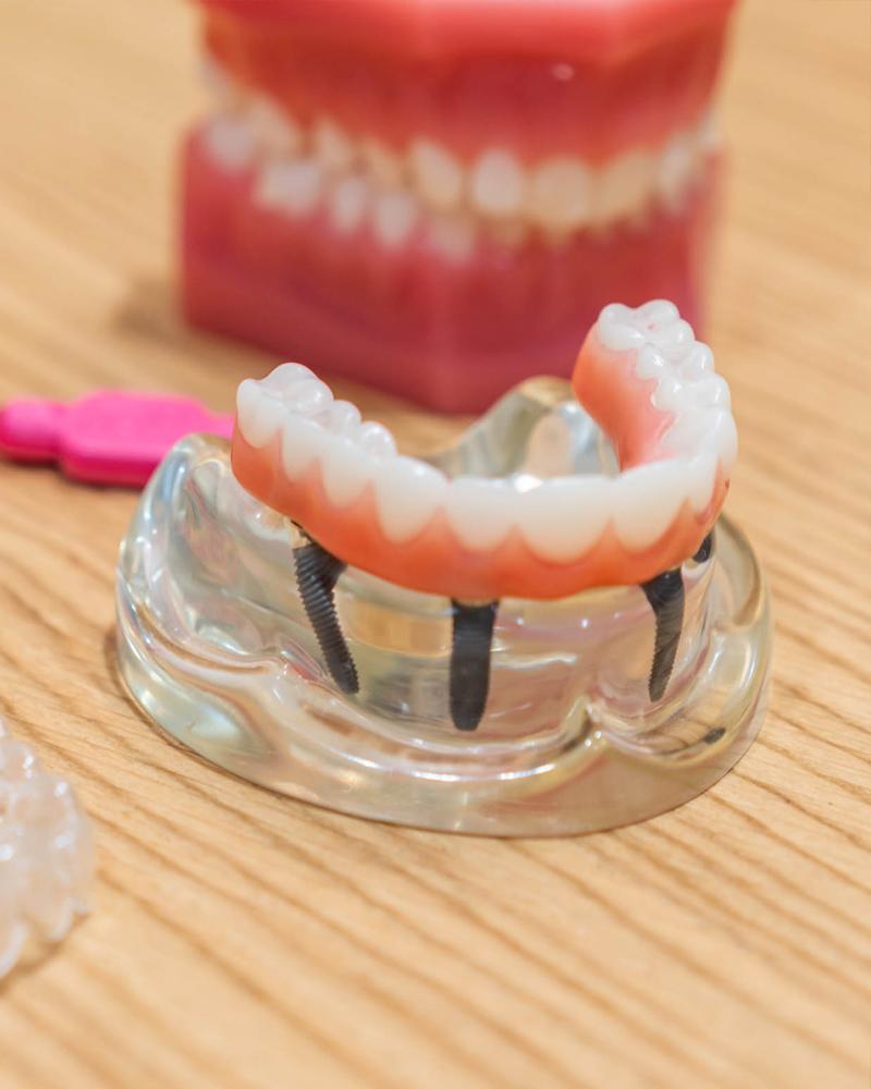 Implantologie Zillertal Zahnarzt